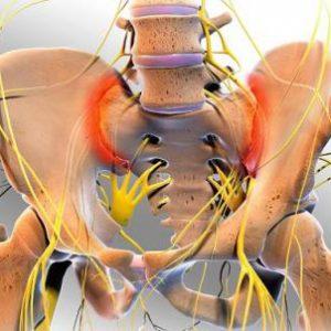 Корінцеві болі при остеохондрозі хребта в попереку, спині і ногах: симптоми патології, лікування мануальною терапією