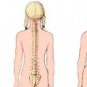 Лівобічний сколіоз хребта 1-ой і 2-ой ступеня: у грудному, поперековому та шийному відділі, лікування мануальною терапією