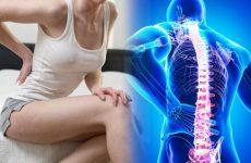 М'язово-тонічний больовий синдром хребта в шийному, грудному та попереково-крижовому відділі: причини і симптоми, лікування
