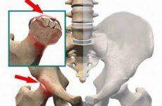 Остеонекроз медіального виростка головки стегнової кістки: причини і симптоми руйнування кульшового суглоба, методи лікування без операції
