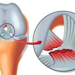 Чому терпне нога в області коліна: захворювання і способи їх лікування за допомогою методик мануальної терапії