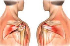 Периартроз плечового суглоба: симптоми і лікування, діагностика та потенційні причини розвитку захворювання