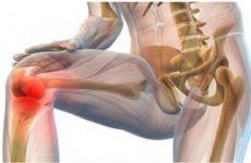 Пірофосфатная артропатія: відкладення солей кальцію в суглобах