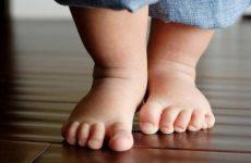 Плосковальгусная установка стоп у дітей і дорослих: ступеня і лікування