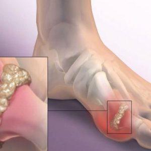 Чому болить великий палець на нозі: причини і захворювання, способи їх лікування за допомогою методів мануальної терапії