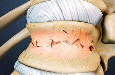 Чому болить хребець при натисканні: що робити, як лікувати захворювання за допомогою мануальної терапії