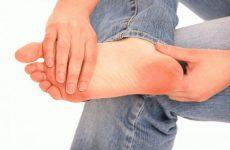 Чому боляче наступати на ногу: причини і лікування