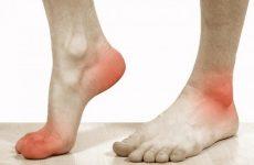 Чому болять ахіллові сухожилля на обох ногах після бігу і при ходьбі: причини і симптоми, можливості лікування