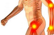 Подагричний артрит: симптоми і лікування