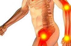 Поліартрозу суглобів: причини, симптоми і лікування захворювання