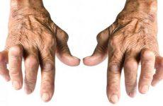 Поліартрозу суглобів кистей рук: причини, симптоми і лікування за допомогою мануальної терапії
