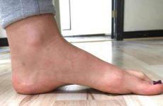 Поперечна плоскостопість стопи ніг: симптоми і лікування у дорослих і дітей, мануальна терапія