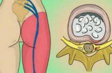 Радикуліт попереку: симптоми і лікування, які болі і що робити, щоб їх прибрати за допомогою мануальної терапії