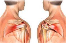 Поширені хвороби плеча та його структурних частин: причини, симптоми і лікування захворювань за допомогою методів мануальної терапії
