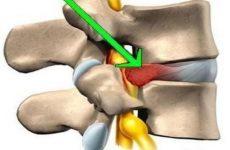 Розрив фіброзного міжхребцевого диска: причини і лікування