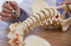 Ретролистез тіла хребця і диска: що це таке, симптоми та можливості лікування за допомогою методів мануальної терапії