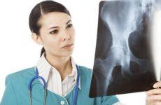 Сакроілеїт крижово-клубового зчленування: що за хвороба, причини, симптоми і лікування методами мануальної терапії