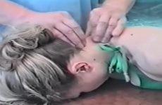 Шийний остеохондроз і артеріальний тиск: як взаємопов'язані і за допомогою чого лікувати скачки артеріального тиску