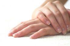 Лущиться шкіра на руках: що робити?