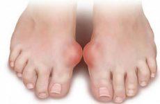 Шишки на великих пальцях ніг: причини появи і як лікувати за допомогою методів мануальної терапії