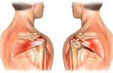 Сильно болять м'язи плечей: чому і як лікувати