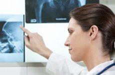 Синовіт кульшового суглоба: причини, симптоми і лікування у дітей та дорослих з допомогою методів мануальної терапії