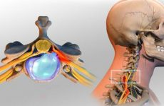 Хребці зміщуються: симптоми патології у шийному, грудному і поперековому відділах, що робити, як лікувати