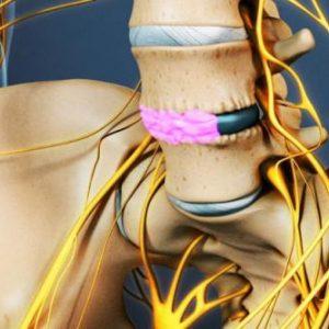Зміщення хребців і суглобів хребта: причини патології і симптоми, що робити і як лікує за допомогою методів мануальної терапії
