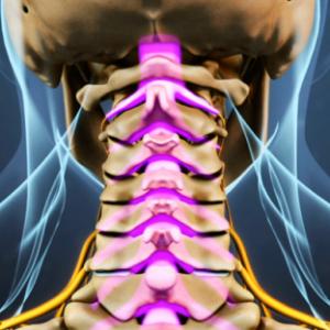 Спондилоартроз шийного відділу хребта: симптоми і лікування деформуючої патології за допомогою методик мануальної терапії
