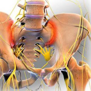 Спондилопатія хребта: види руйнування хребців у шийному, грудному і поперековому відділі хребта, методи лікування