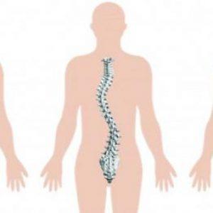 Ступені сколіозу хребта у дорослих: скільки їх і як можна лікувати викривлення за допомогою методів мануальної терапії
