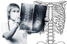 Субхондральний остеосклероз замикальних пластин тіл хребців: що це таке, причини, способи лікування мануальною терапією
