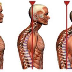 Сутулість у дорослого: як виправити з допомогою методик мануальної терапії, масажу і ЛФК, які можуть бути наслідки