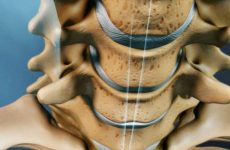 Унковертебральный артроз шийного відділу хребта: причини і симптоми захворювання, методи лікування за допомогою мануальної терапії