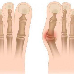 Вальгусна деформація пальця стопи у дітей і дорослих: причини і ступеня, методи корекції та лікування за допомогою мануальної терапії