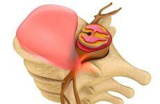 Випадання міжхребцевого диска хребта: причина, симптоми і лікування мануальною терапією