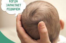 Коли тім'ячко заростає у дитини: норма і відхилення