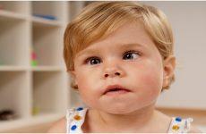 Косоокість у новонароджених