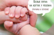 Білі плями на нігтях у дитини: причини і лікування