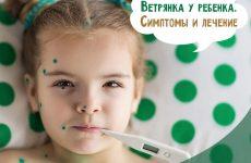 Вітрянка у дітей: симптоми початку і способи лікування