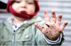 Лямблії у дітей: симптоми і лікування з фото
