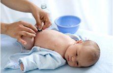 Кровит пупок у новонародженого: що робити