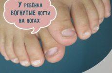 Увігнуті нігті на ногах у дитини: причини і лікування
