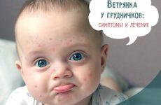 Вітрянка у новонароджених і грудних дітей: симптоми і лікування