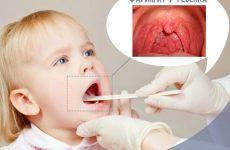 Фарингіт у дітей: симптоми і лікування від Комаровського