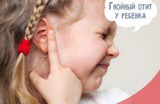 Гнійний отит у дітей: симптоми і лікування в домашніх умовах
