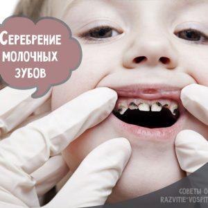 Сріблення зубів у дітей: фото до і після