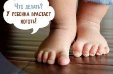 Врослий ніготь у дитини на нозі: як лікувати вдома і що робити