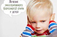 Ексудативний отит у дітей: лікування в домашніх умовах