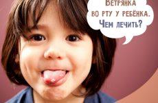 Вітрянка у роті у дитини: чим обробити і чим лікувати